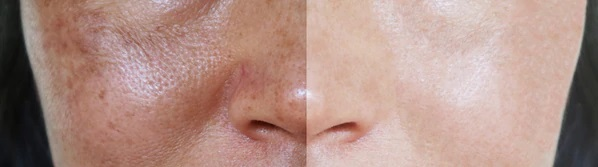 ニキビ原因の毛穴種類に合わせよう、化粧水の選び方!